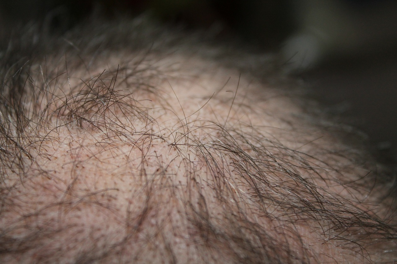 Male Menopause Enlarged
